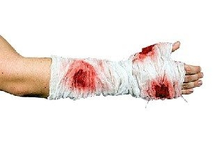Blutiger Arm-Verband